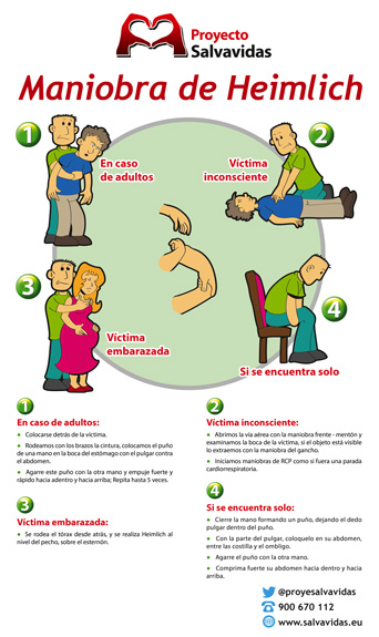 Heimlich maneuver for choking