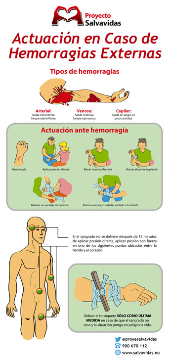 Infographic about external hemorrhages