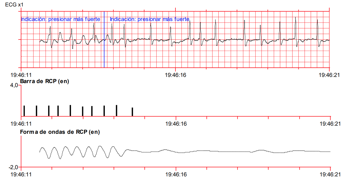 semi-automatic defibrillator rhythm strip